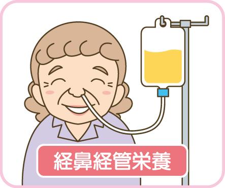 経鼻経管栄養